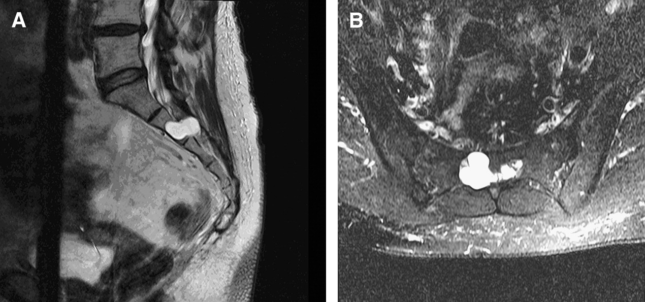 Hiding in Plain Sight: A Case of Tarlov Perineural Cysts ... Sacral Canal Cyst